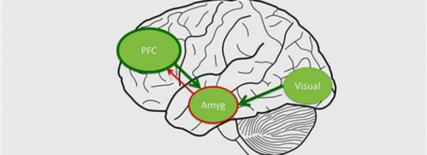 Are depressive and anxiety disorders visible in the adolescent brain?
